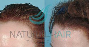 لتصغير القورة وكثافة الشعر,  تصغير الجبهه وانبات الشعر