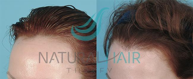 صور لتصغير القورة وكثافة الشعر,  تصغير الجبهه وانبات الشعر