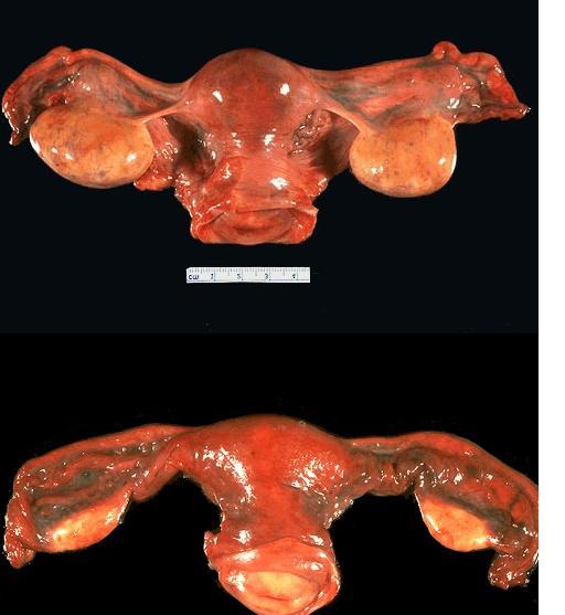 كيف يحدث الحمل عند النساء شرح مصور لعملية  تلقيح البويضه