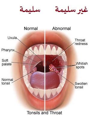 صورة علاج التهاب الحلق عند الرضع
