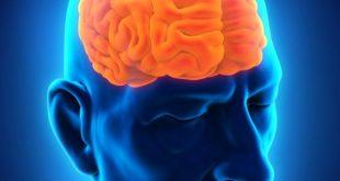 صورة علاج سرطان المخ بالصور