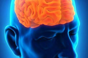 صور علاج سرطان المخ بالصور
