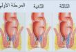 صور ماهي اعراض البواسير