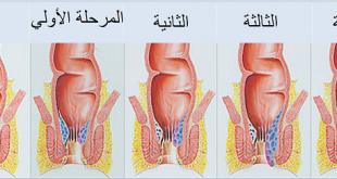 صوره ماهي اعراض البواسير