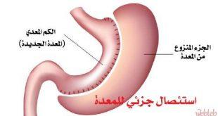 صور خطر سرطانات المعدة