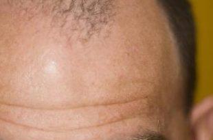 صور علاج الصلع بالثوم
