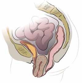 الحمل ساقط فى الحوض ما العلاج