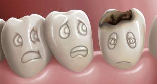 ماهي اضرار تسوس الاسنان