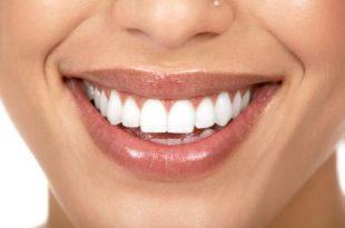 صور طريقة تبيض الاسنان في المنزل بدون طبيب
