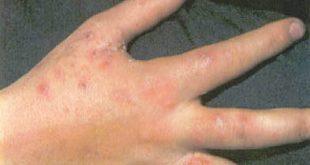 علاج الحبوب الكثيرة اعلى اليد
