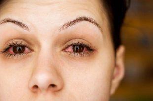 صور الم العين من علامات الحمل المبكرة