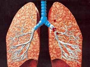 علاج سرطان الرئة بالاعشاب