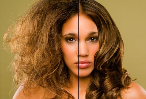 صورة حل مشكلة الشعر الجاف