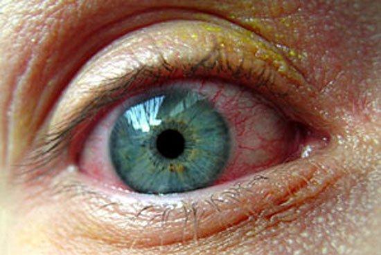 بالصور سبب غباش العين واحدة من العيون 20160715 306