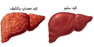 بالصور ين يقع الكبد في جسم النسان 20160715 328