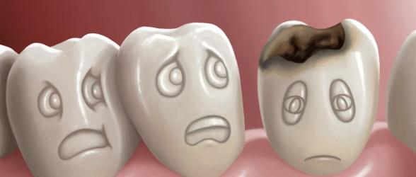 صوره علاج تسوس الاسنان بالقران