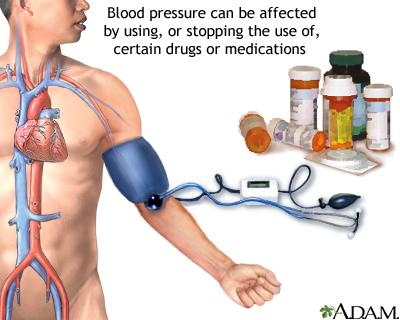صور ارتفاع ضغط الدم واعراضه , ضغط الدم
