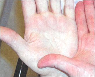 صور عراض فقر الدم الحاد , تعرفوا على فقر الدم