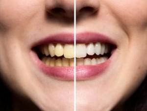 كيفيه_تبييض_الاسنان