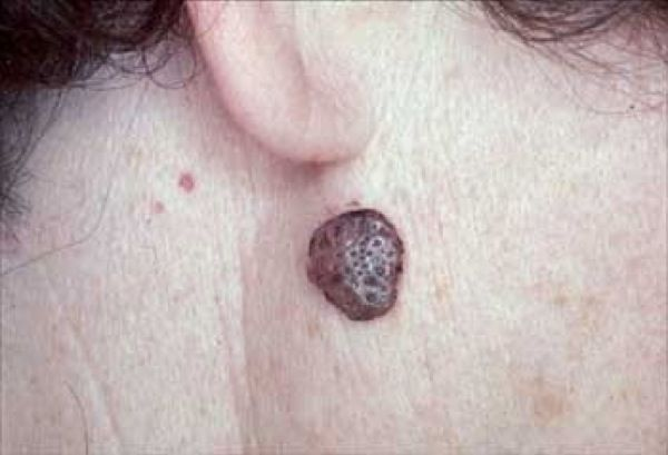 صورة علاج مرض الزهرى بالاعشاب , الاعشاب المستخدمه فى علاج مرض الزهرى
