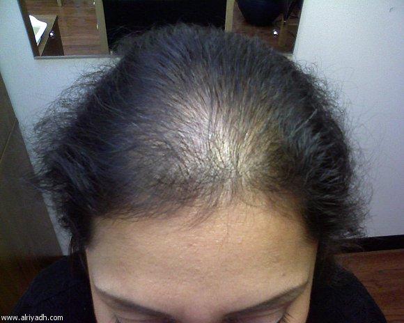 صورة علاج تساقط شعر مقدمة الراس