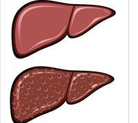 ما هُو الكبد الدهني