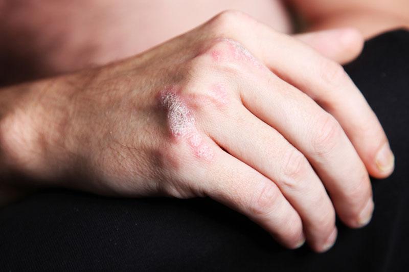 صور طرق علاج مرض الصدفية