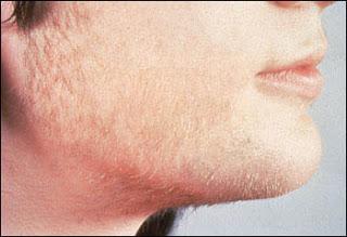 صور الطعمة التي تكثف شعر الشنب