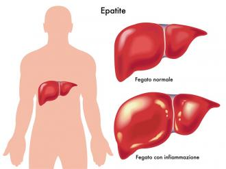 صور عراض مرض الكبد