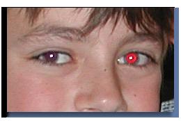 صوره ازالة العين الحمراء من الصور