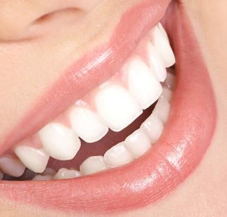 صوره علاج تبيض الاسنان