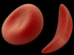 صورة اعشاب لعلاج الانميا فتكات