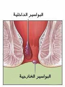 صور طريقة علاج بواسير متدلية