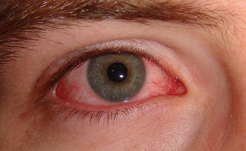 صورة مرض العين الرمد