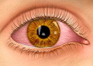 صور مرض العين الرمد