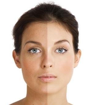 صورة وصفات لتبييض الوجه سهلة جدا