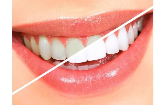 صور كيفية تبيض الاسنان بطرق طبيعية