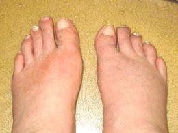صور اعراض املاح النقرس وعلاجة