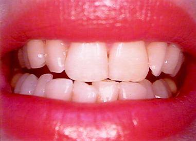 صور تبييض الاسنان في البيت