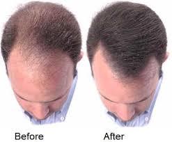 صور علاج تساقط الشعر الدهني للرجال