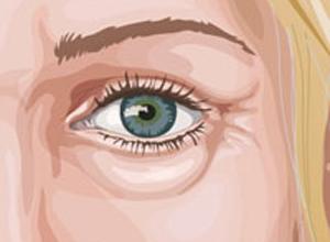 صور علاج الانتفاخ للعين