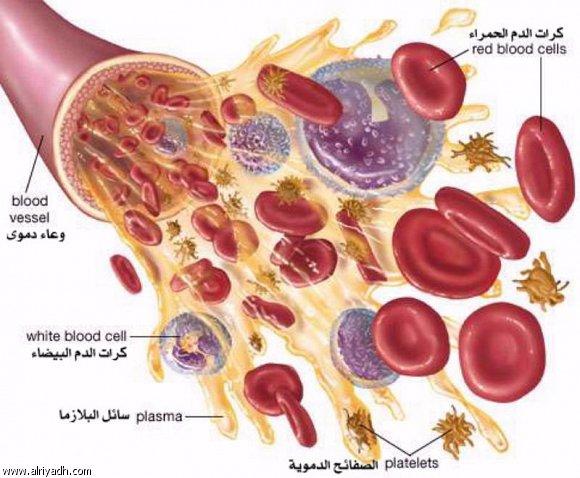 صور سرطان الدم