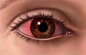 صورة مرض الرمد في العين
