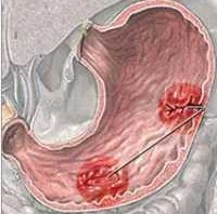 صورة ضرار ثقب المعده وعلاجة