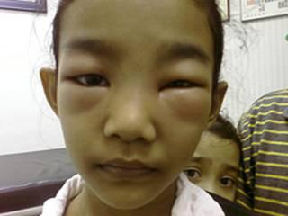 صور اسباب مرض الزلال وعلاجة