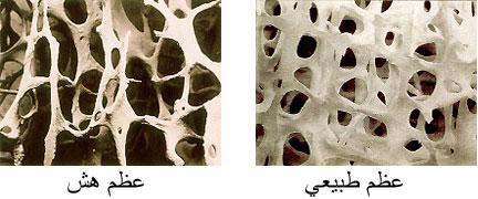 صور تعريف هشاشة العظام