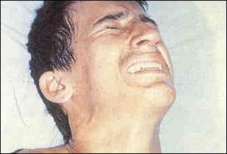صور ما هو مرض التيتاني