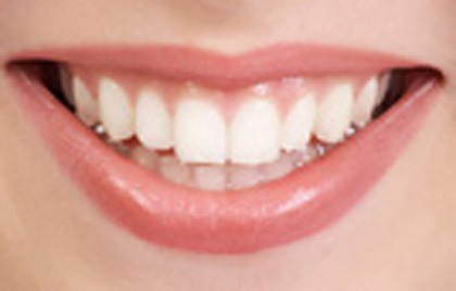 صور موضوع عن الاسنان