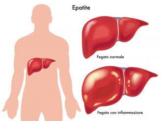 صورة اعراض امراض الكبد