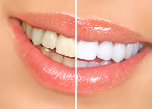 صورة الطريقة الافضل تبيض الاسنان